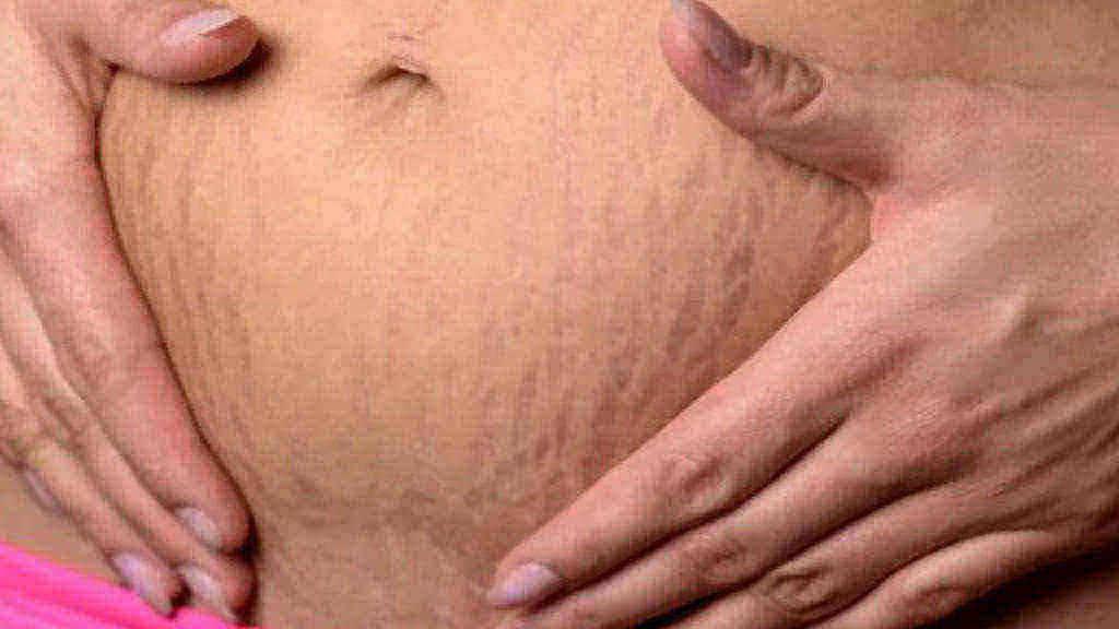 Rozstępy po porodzie na brzuchu - jak pozbyć się rozstępów?